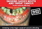 澳大利亚警示性烟标